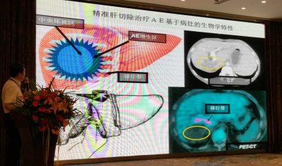 李海涛在2017年全国包虫病防控技术研讨会上作报告